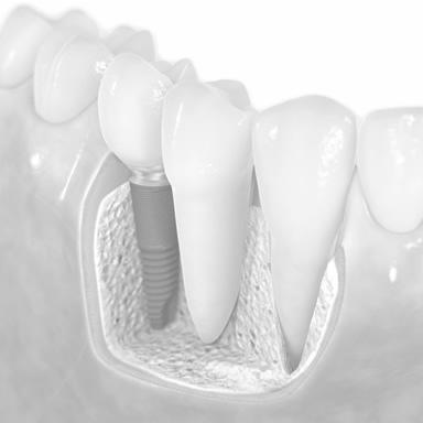 Resultado de imagem para Implantes dentários